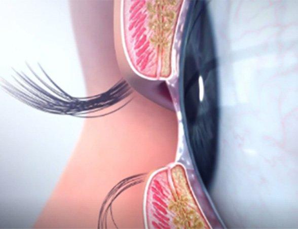 Image du dysfonctionnement des glandes de Meibomius
